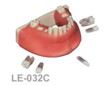 BoneModels LE032C 2 220x174 - LE-032C:  Mandible with fixed and endo teeth. Cortical and cancellous bone. Model with soft tissue. Contact points opened on all the teeth to allow for suturing.