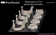 BoneModels RK 1 220x138 - RK: Reabsorption Kit Maxilla and Mandible.