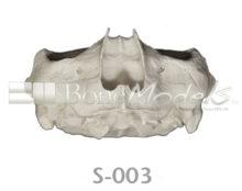 BoneModels S003 copia 1 220x174 - S-003: Medio cráneo y mandíbula articulada con reabsorción severa.