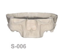BoneModels S006 1 220x174 - S-006: Half skull with edentulous maxilla.