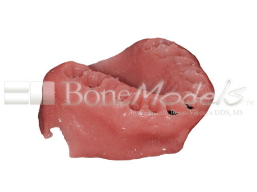 BoneModels STU009 02 500x375 - STU-009: Encía para UP-061