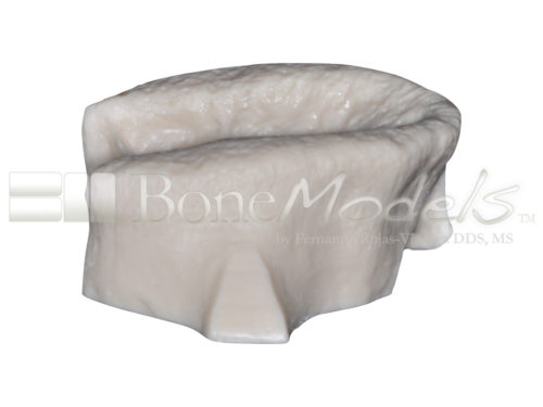 BoneModels U001B 03 1 500x375 - U-001B: Edentulous maxilla for the skull.