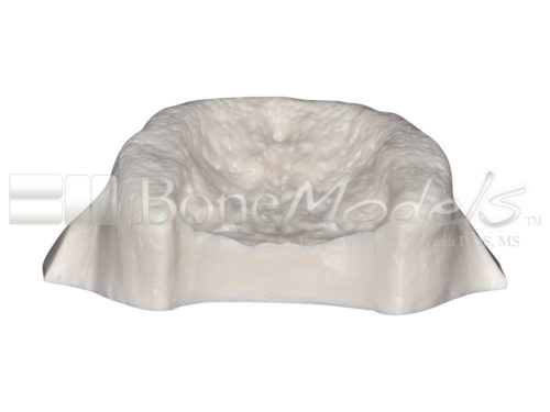 BoneModels U001B 06 1 500x375 - U-001B: Edentulous maxilla for the skull.