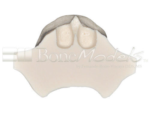 BoneModels U001B 08 1 500x375 - U-001B: Edentulous maxilla for the skull.