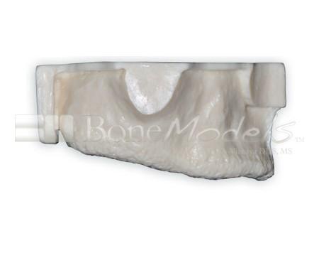 BoneModels U002A 02 1 - U-002A: Edentulous maxilla with sinuses.