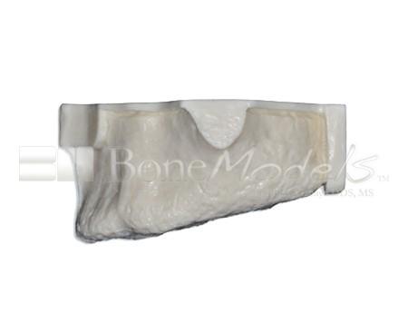 BoneModels U002A 03 1 - U-002A: Edentulous maxilla with sinuses.