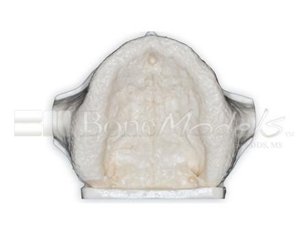BoneModels U002A 06 1 - U-002A: Edentulous maxilla with sinuses.