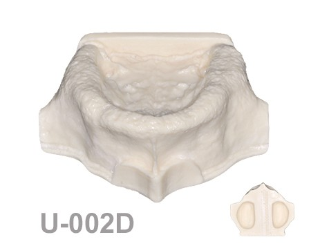 BoneModels U002D 1 - U-002D: Edentulous maxilla with both sinuses one of them thicker than the other.