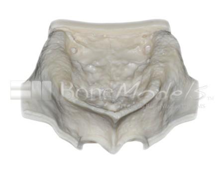 BoneModels U003A 01 1 - U-003A: Severely atrophic edentulous maxilla.