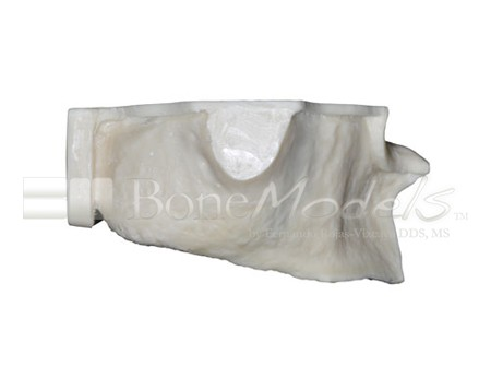 BoneModels U003A 02 1 - U-003A: Severely atrophic edentulous maxilla.