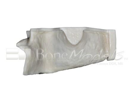 BoneModels U003A 03 1 - U-003A: Severely atrophic edentulous maxilla.