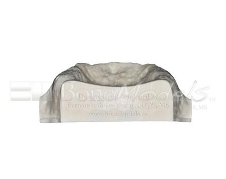 BoneModels U003A 05 1 - U-003A: Severely atrophic edentulous maxilla.
