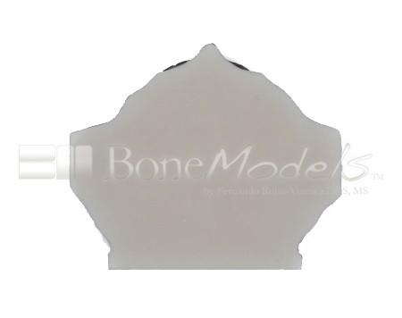 BoneModels U003A 07 1 - U-003A: Severely atrophic edentulous maxilla.