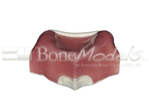 BoneModels U003B 01 500x375 - U-003B: Severely atrophic edentulous maxilla with soft tissue.