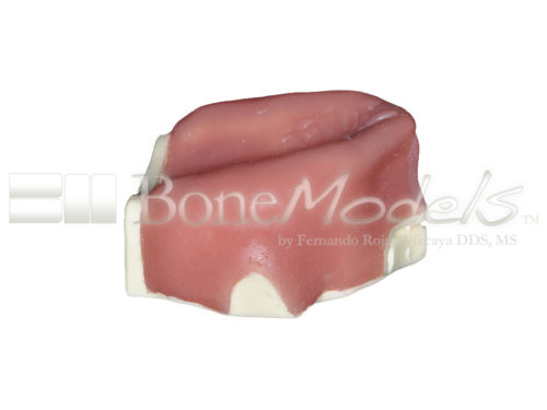 BoneModels U003B 04 500x375 - U-003B: Severely atrophic edentulous maxilla with soft tissue.