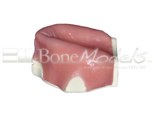 BoneModels U003B 05 500x375 - U-003B: Severely atrophic edentulous maxilla with soft tissue.