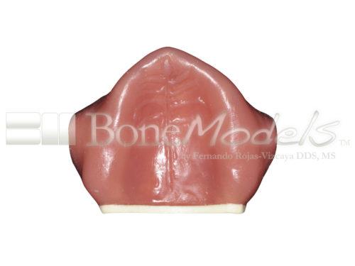 BoneModels U003B 06 500x375 - U-003B: Severely atrophic edentulous maxilla with soft tissue.