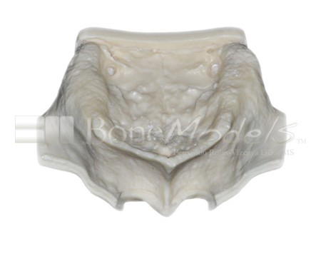 BoneModels U004A 01 1 - U-004A: Severely atrophic edentulous maxilla with sinuses.