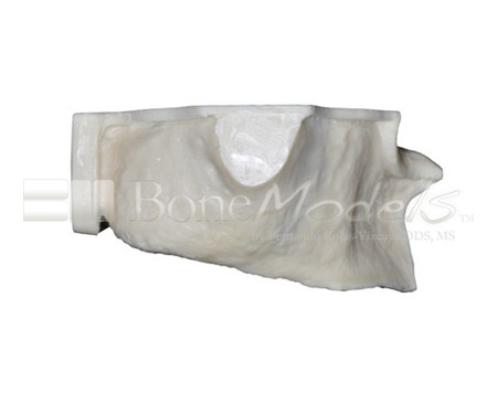 BoneModels U004A 02 1 - U-004A: Severely atrophic edentulous maxilla with sinuses.