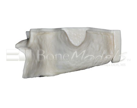 BoneModels U004A 03 1 - U-004A: Severely atrophic edentulous maxilla with sinuses.