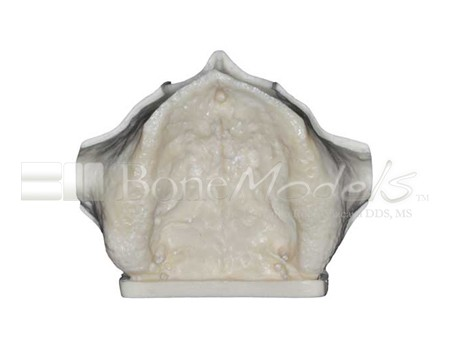 BoneModels U004A 06 1 - U-004A: Severely atrophic edentulous maxilla with sinuses.
