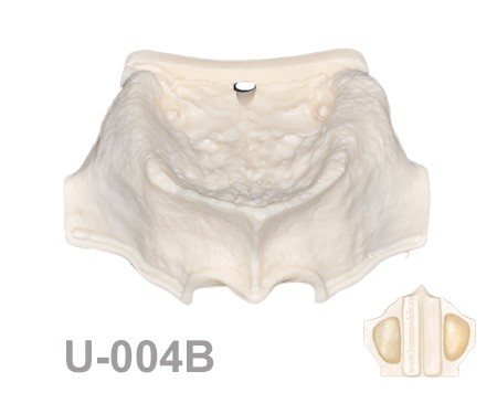 BoneModels U004B 1 - U-004B: Severely atrophic edentulous maxilla with narrow sinuses.