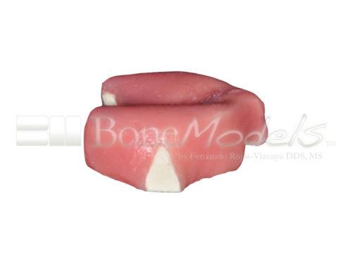 BoneModels U005 03 500x375 - U-005: Modelo maxilar desdentado severamente atrófico con encía para el cráneo.