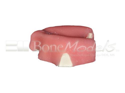 BoneModels U005 04 500x375 - U-005: Modelo maxilar desdentado severamente atrófico con encía para el cráneo.