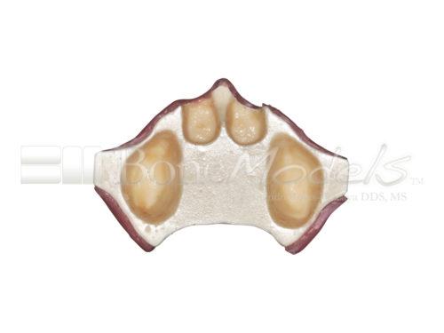 BoneModels U005 06 500x375 - U-005: Severay atrophic edentulous maxilla with soft tissue for skull.