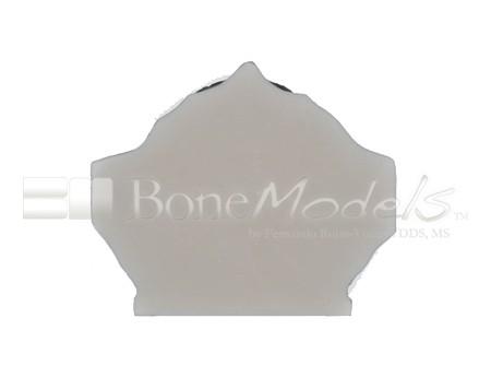 BoneModels U007A 07 1 - U-007A: Edentulous maxilla with soft tissue.
