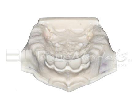BoneModels U009A 01 1 - U-009A: Partially edentulous maxilla.