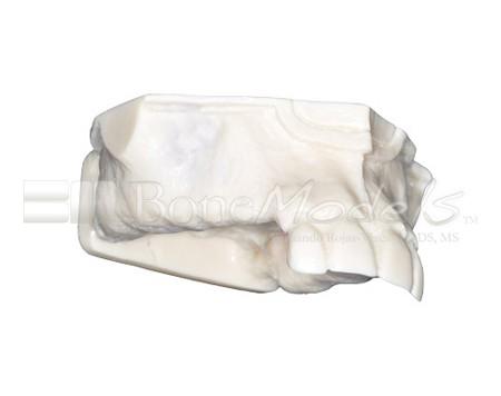 BoneModels U009A 02 1 - U-009A: Partially edentulous maxilla.
