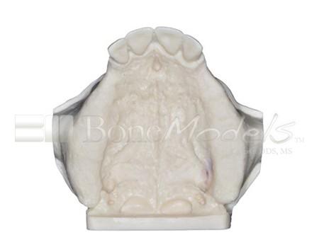 BoneModels U009A 06 1 - U-009A: Partially edentulous maxilla.