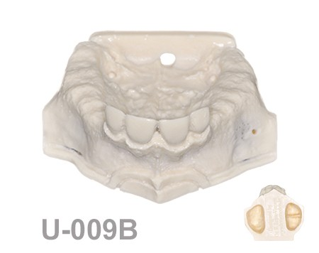 BoneModels U009B 1 - U-009B: Partially edentulous maxilla with sinuses.