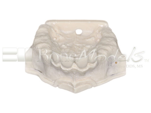 BoneModels U009B 01 1 500x375 - U-009B: Partially edentulous maxilla with sinuses.