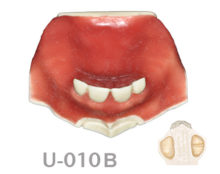 BoneModels U010B 2 220x174 - U-010B: Partially edentulous maxilla with soft tissue and sinuses with Schneider membrane. Septum in the right sinus.