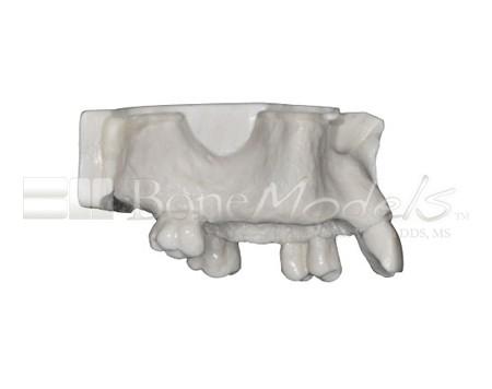 BoneModels U017A 02 - U-017A: Modelo maxilar parcialmente desdentado, tres alvéolos, con una zona atrófica y un seno.