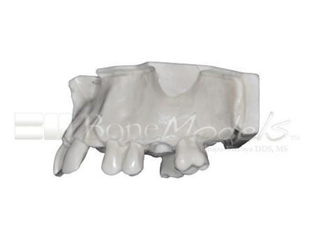 BoneModels U017A 03 - U-017A: Modelo maxilar parcialmente desdentado, tres alvéolos, con una zona atrófica y un seno.