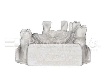 BoneModels U017A 05 - U-017A: Modelo maxilar parcialmente desdentado, tres alvéolos, con una zona atrófica y un seno.