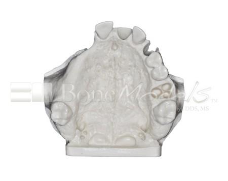 BoneModels U017A 06 - U-017A: Modelo maxilar parcialmente desdentado, tres alvéolos, con una zona atrófica y un seno.