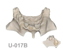 BoneModels U017B 2 220x174 - U-017B: Partially edentulous maxilla, 3 sockets, atrophic zone and 1 sinus. Model for the skull.