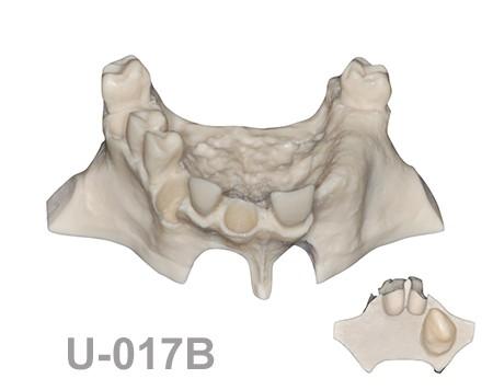 U-017B: Modelo maxilar parcialmente desdentado, tres alvéolos, con ...