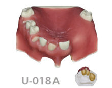 BoneModels U018A 220x174 - U-018A: Partially edentulous maxilla, 3 sockets, atrophic zone, 1 sinus and soft tissue.