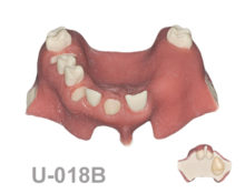 BoneModels U018B 1 220x174 - U-018B: Partially edentulous maxilla, 3 sockets, atrophic zone, 1 sinus and soft tissue. Model for the skull.