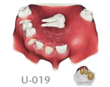 BoneModels U019 220x174 - U-019: Partially edentulous maxilla, 3 sockets, atrophic zone, 1 sinus and soft tissue. Removable first maxillary left molar.