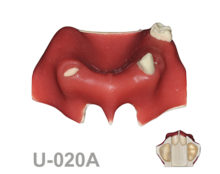 BoneModels U020A 220x174 - U-020A: Partially edentulous maxilla with soft tissue, 2 sockets and both sinuses.