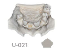 BoneModels U021 1 220x174 - U-021: Partially edentulous maxilla with 1 socket and healed ridges.
