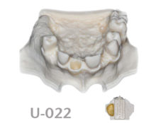 BoneModels U022 1 220x174 - U-022: Partially edentulous maxilla with 1 socket, healed ridges and 1 sinus.