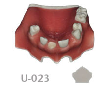 BoneModels U023 1 220x174 - U-023: Partially edentulous maxilla with 1 socket, healed ridges and soft tissue.