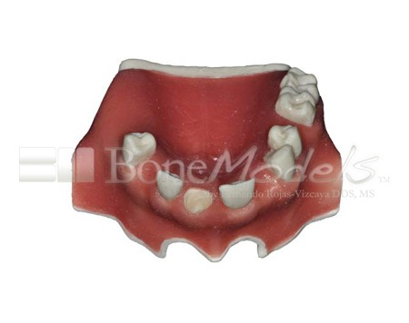 BoneModels U023 01 1 - U-023: Partially edentulous maxilla with 1 socket, healed ridges and soft tissue.